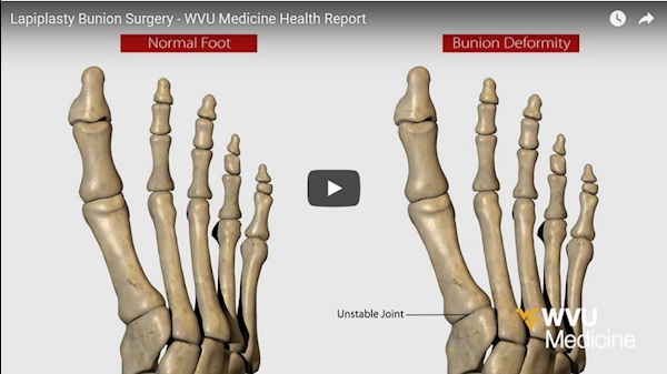 WVU Medicine Health Report - Lapiplasty Bunion Surgery