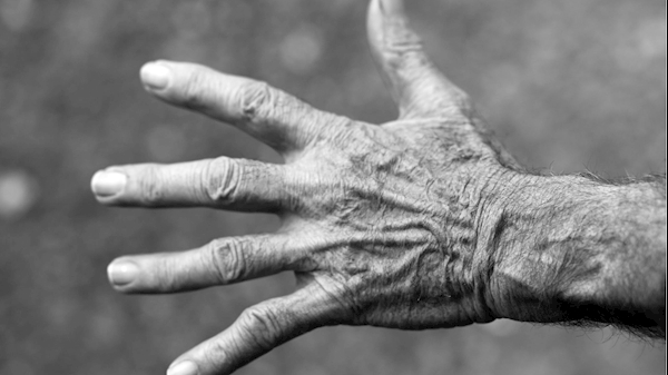 NIH grant aims to develop new drug to treat acute arthritis
