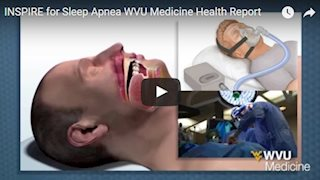 INSPIRE: New device helps patients with sleep apnea (Video)
