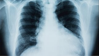 Mobile lung cancer screening program to assist in early detection