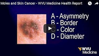 Review warning signs for moles and skin cancer (Video)