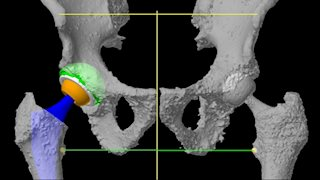 Robotic joint replacement improves lives at any age