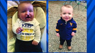 WVU Medicine Children's Cleft Lip and Palate Team delivers smiles