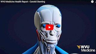 WVU Medicine Health Report - Carotid stenting