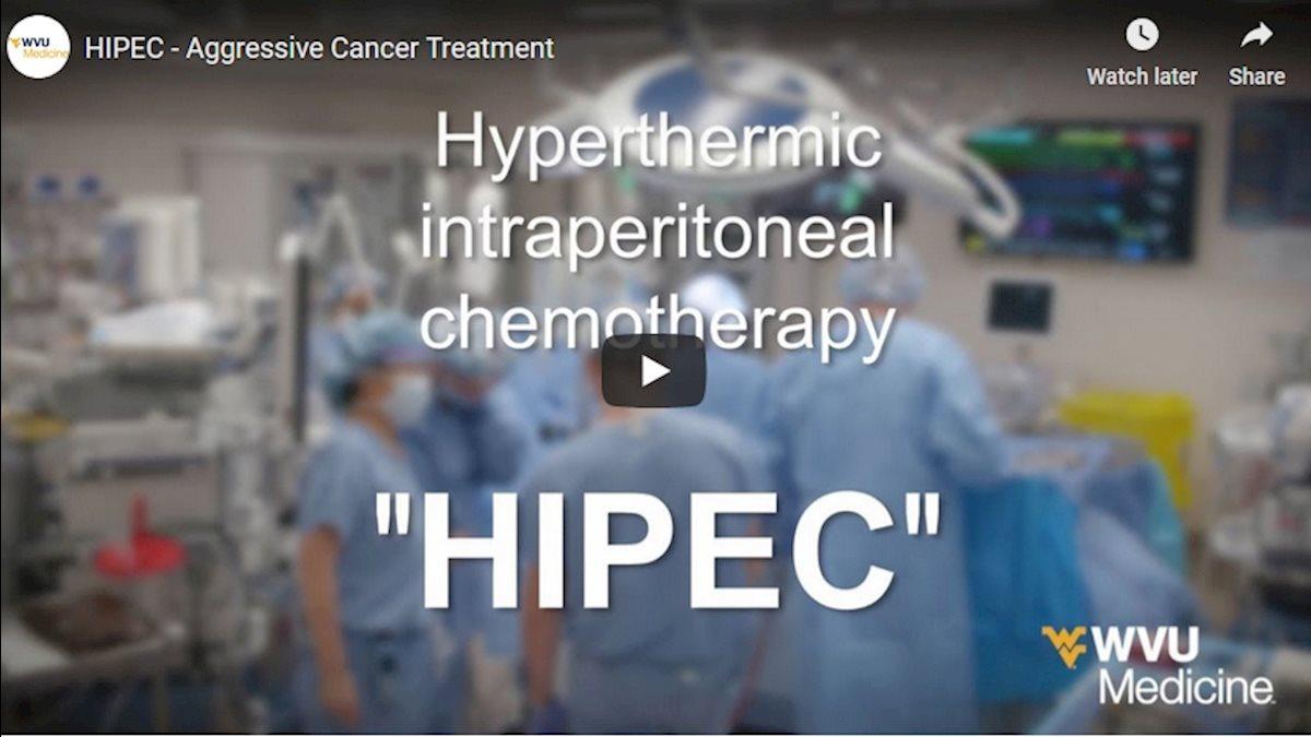 WVU Medicine Health Report: HIPEC for aggressive cancer treatment