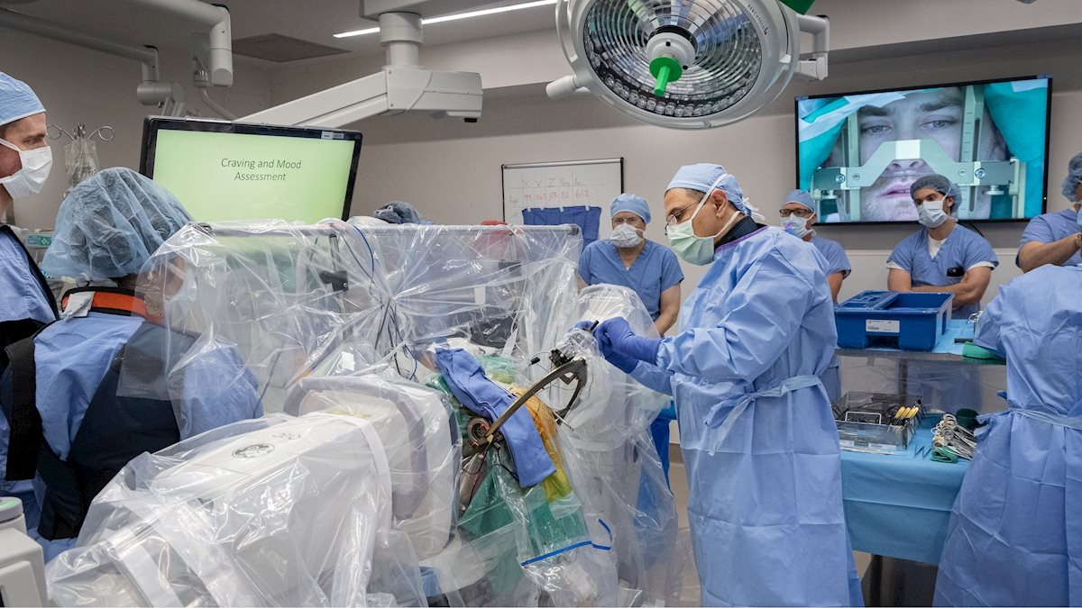 WVU Rockefeller Neuroscience Institute first in U.S. to use deep brain stimulation to fight opioid addiction