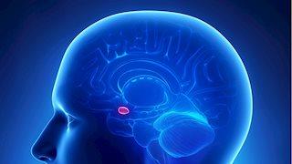 WVU Rockefeller Neuroscience Institute researchers first to test aneurysm treatment device